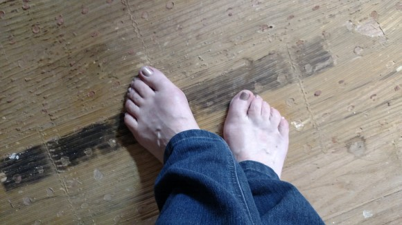 Gnarly feet, but a gnarlier floor.  I can at least fix the floor.